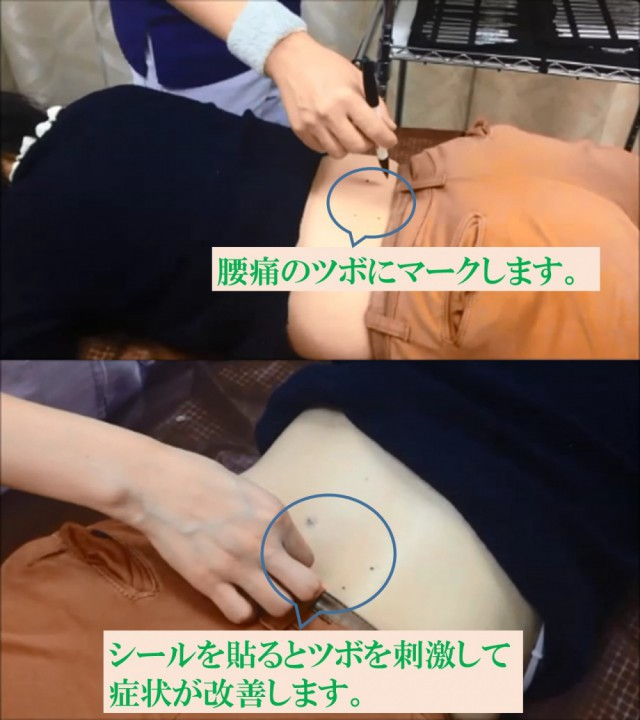 腰椎ヘルニア ツボにマークします シールを貼ると症状が改善します