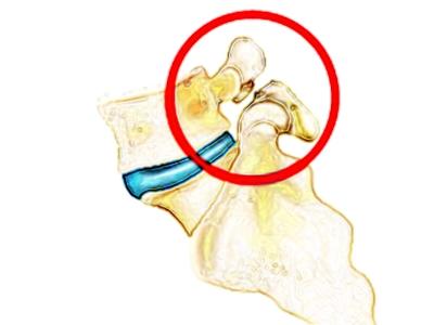 脊椎分離症の図