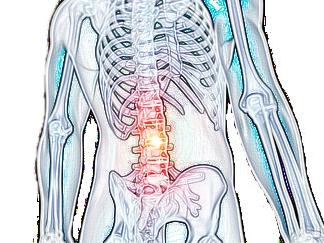 心因性腰痛症の図