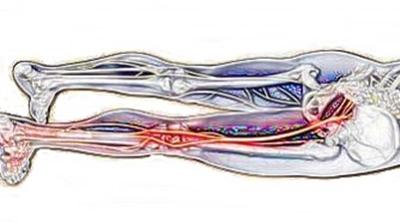 坐骨神経痛の図
