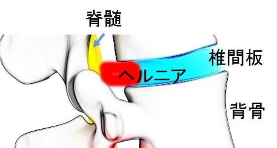 腰痛 腰椎間板ヘルニア 色彩治療