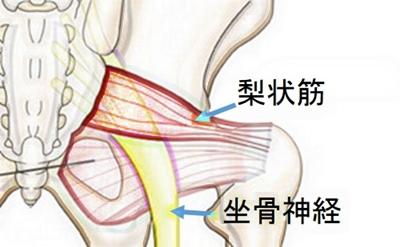 梨状筋症候群 腰痛 色彩治療  表参道 外苑前